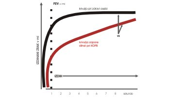 graf-slika-4