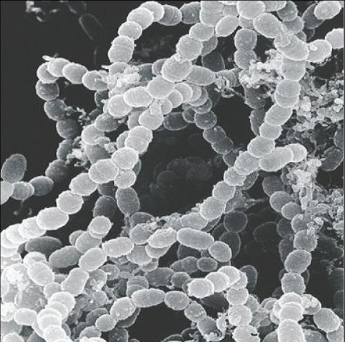 uz-bakterije-1