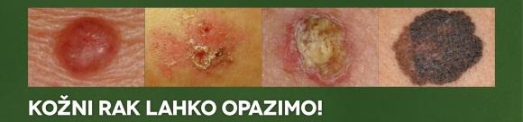 melanom pasica