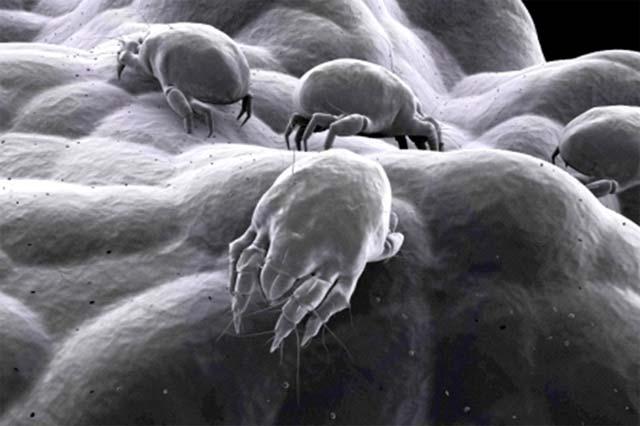 Vir: https://sleepworks.com/resource/sleep-health/dust-mites