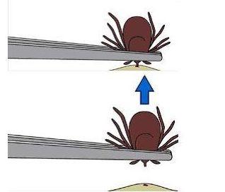 odstranjevanje klopa