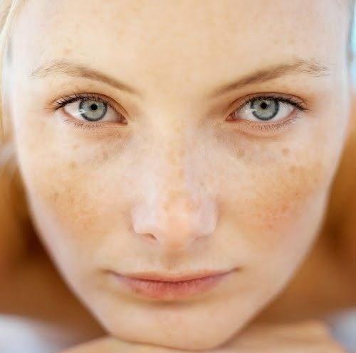 hiperpigmentacija obraz pinterest