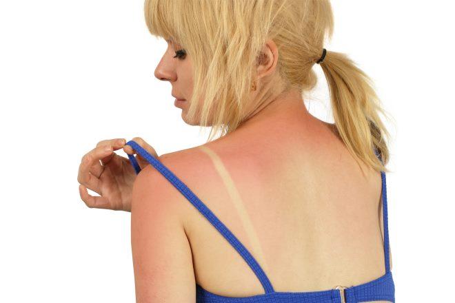 Cicatridina sončna opeklina MON1