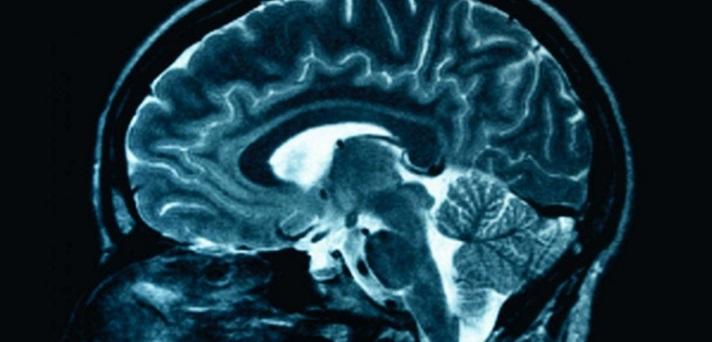 Ususret Međunarodnom danu epilepsije i Nacionalnom danu oboljelih od epilepsije