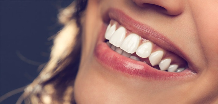 Do bleščečega nasmeha brez bolečin