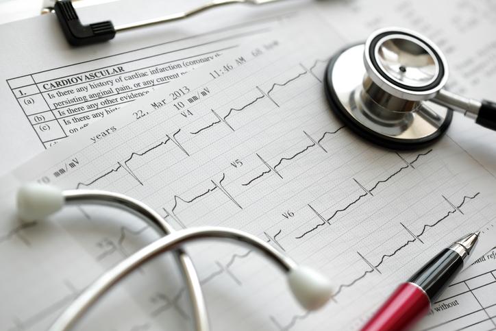 Strdek kot dejavnik tveganja za srčno in možgansko kap