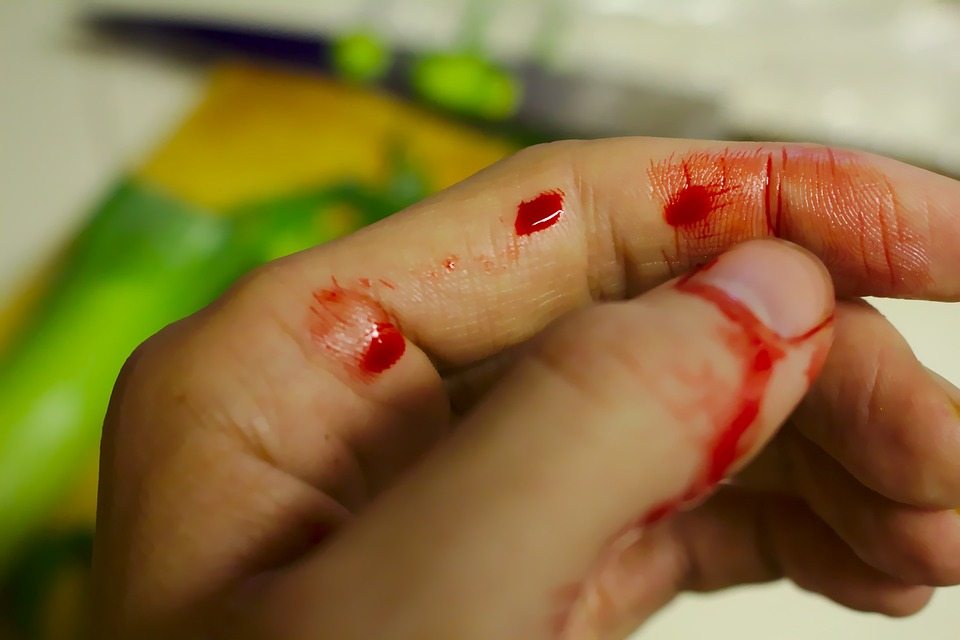 ruka prst krv ozljeda rana