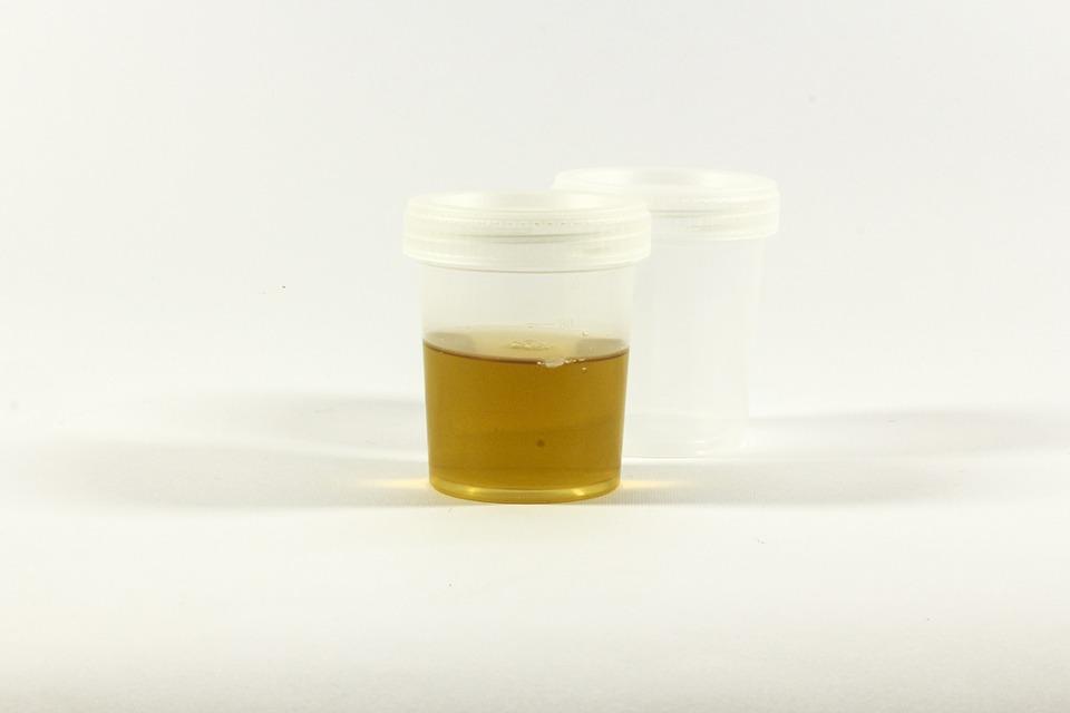 urin posuda laboratorij