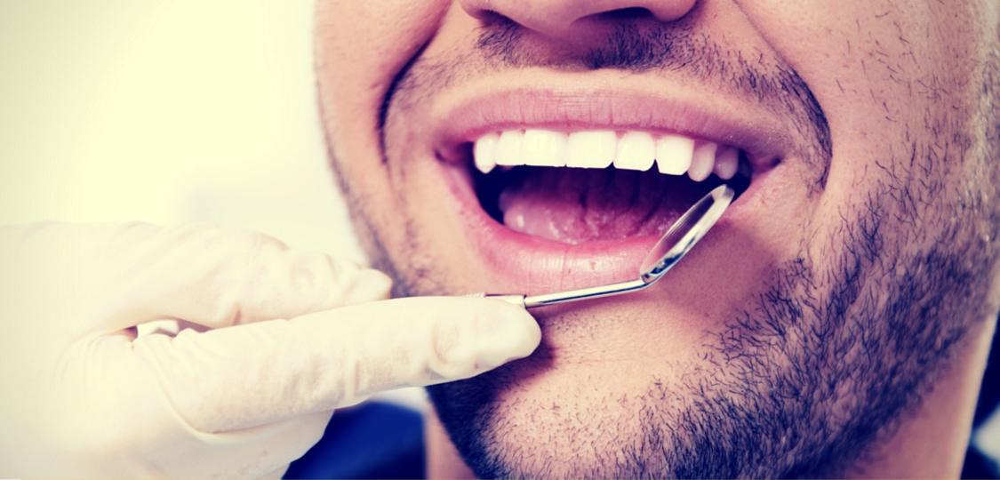 Lasersko zdravljenje parodontitisa