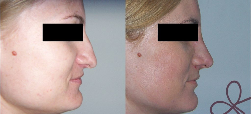 korekcija operacija ženska nos