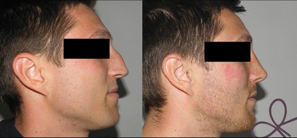 korekcija operacija moški nos