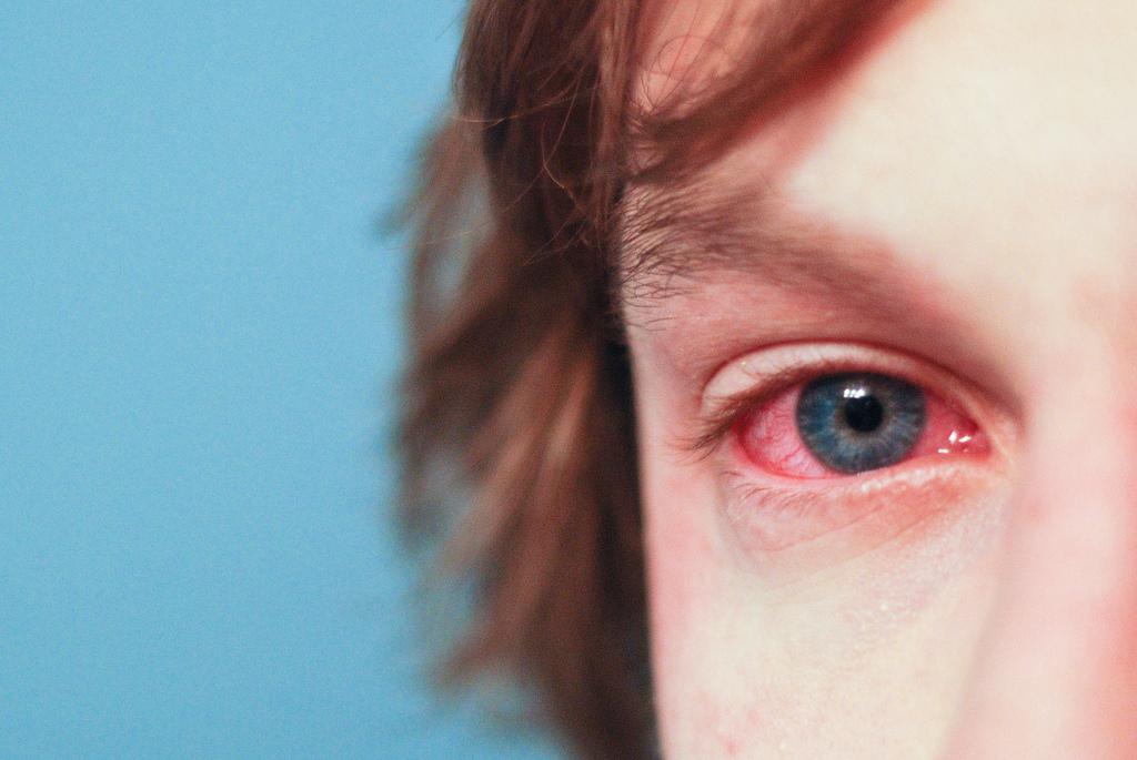 oko alergija crvenilo