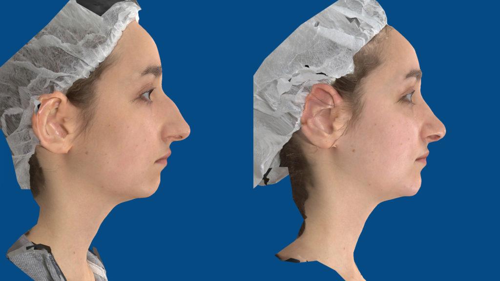 korekcija nosu Bagatin simulacija