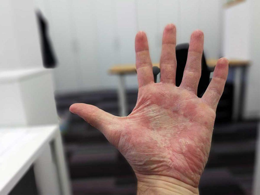simptomi na roki dermatitis