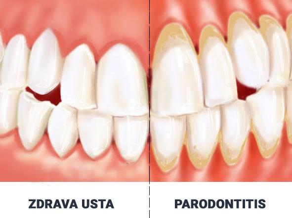 dental jakljevic zub parodontitis upala